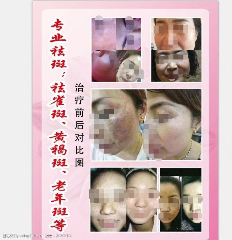 女性护理美容海报图片