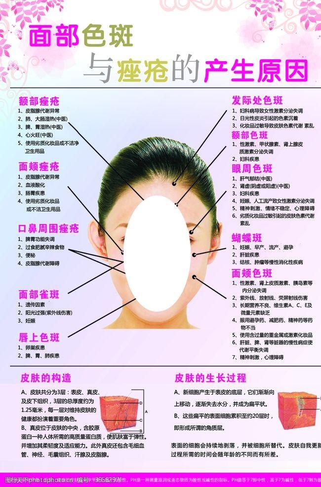 雀斑面部色斑与痤疮产生原因图片